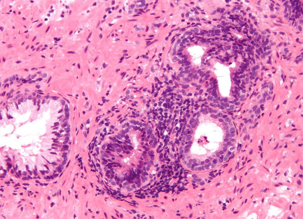 ¿Puede la prostatitis provocar cáncer?