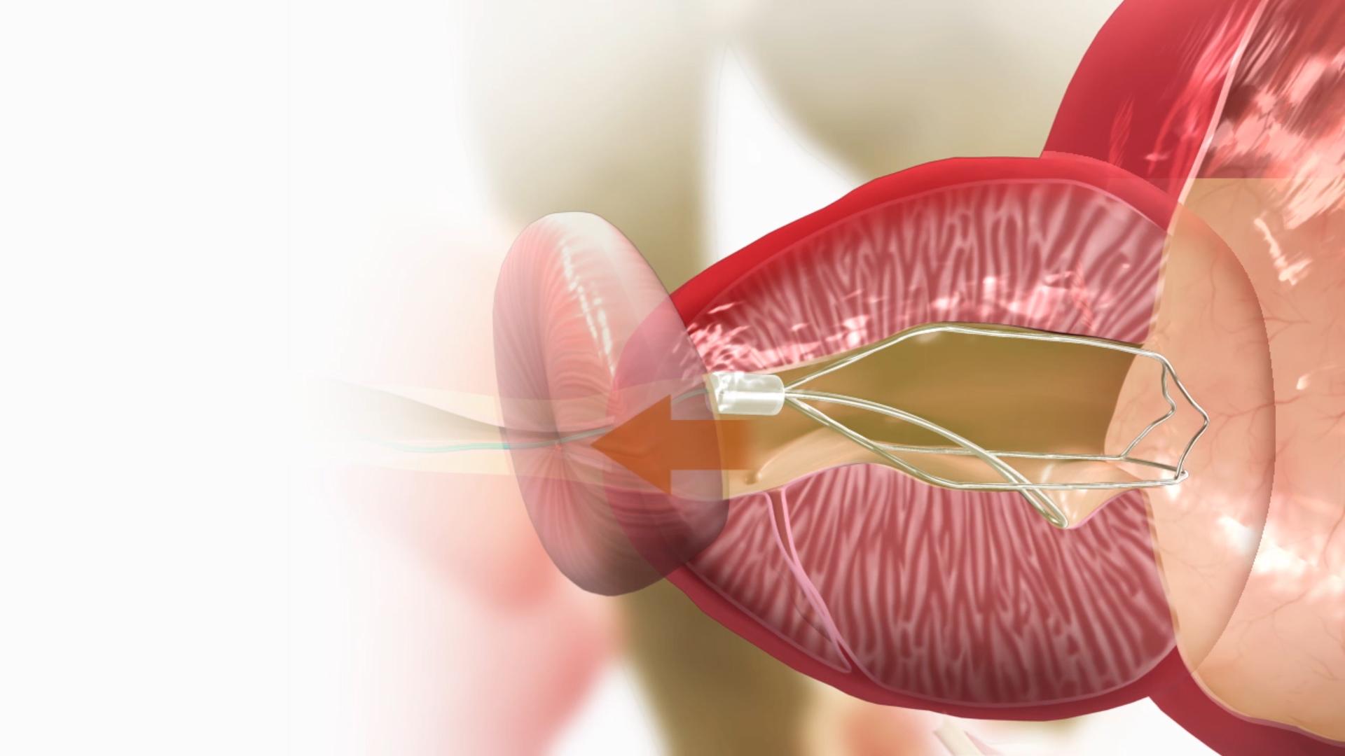tratamiento próstata I / tind / stent