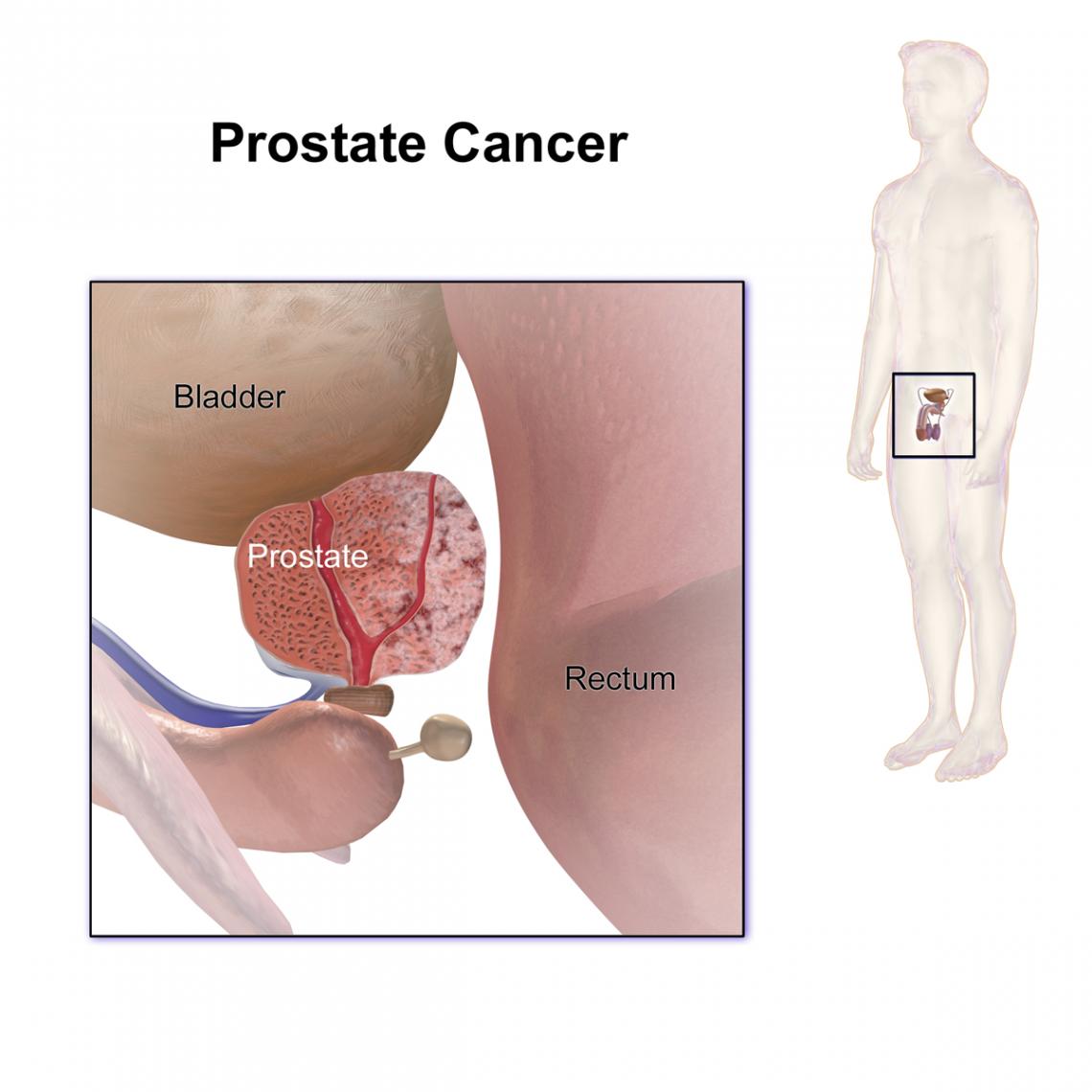diferentes tipos de biopsia de próstata